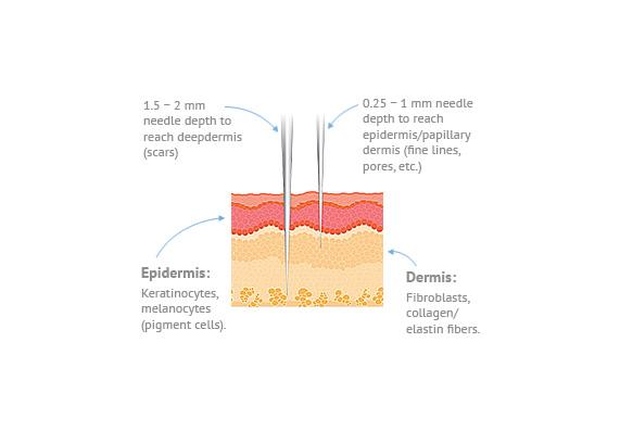 epidermis-image